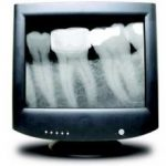 New Dental X-Ray Guidelines: How They Will Affect Your Practice