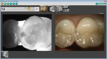 Putting Caries Detection to Use