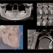 Cone Beam Ct A Breakthrough Imaging Technology For