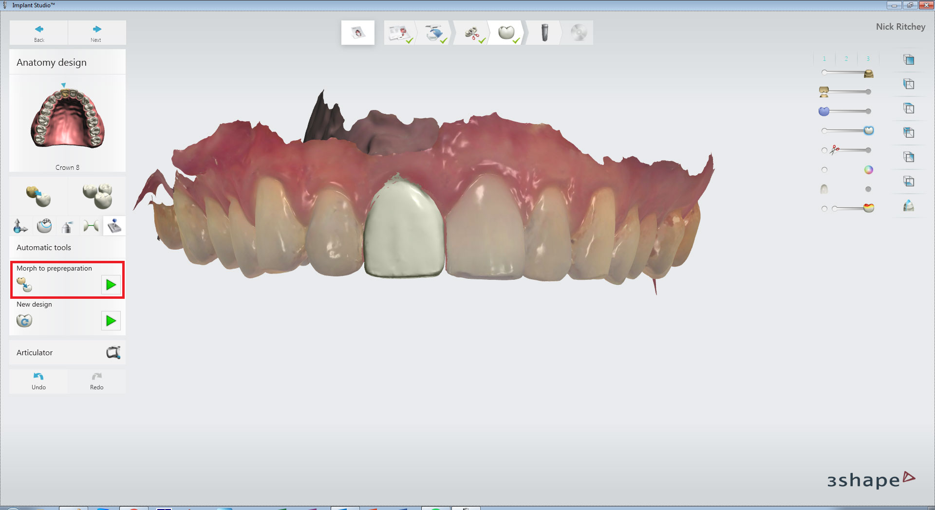 CBCT and Digital Scanning for the Implant Workflow