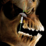 Ever-evolving Tools for More Complete Implant Planning
