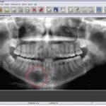 Digital Imaging—Life-Changing Technology